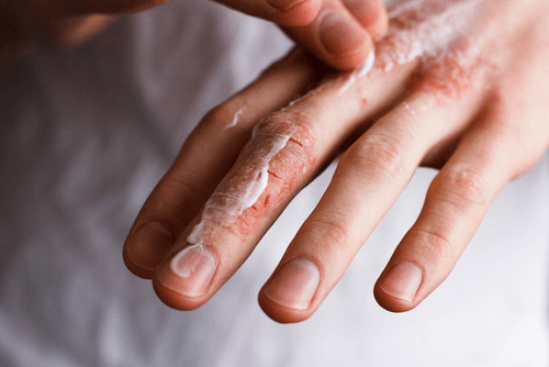 Skin irritation fingers