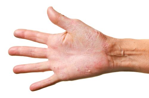 Skin irritation hand