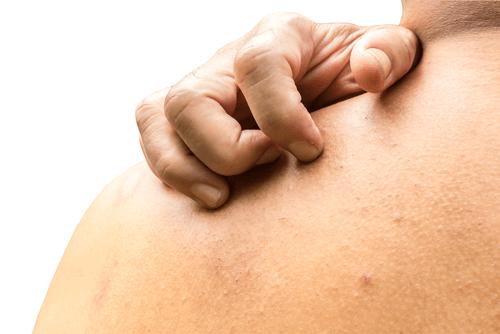 Skin irritation itching