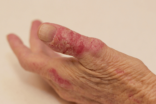 Skin rashes eczema