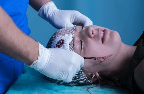 Skull fracture head injury