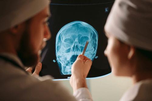 Skull fracture treatment