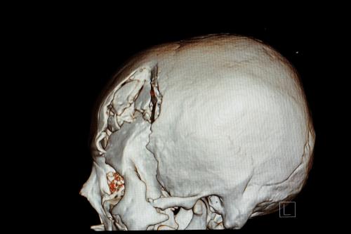 Skull fracture xray