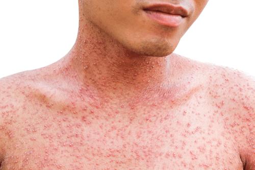 Small pox rashes