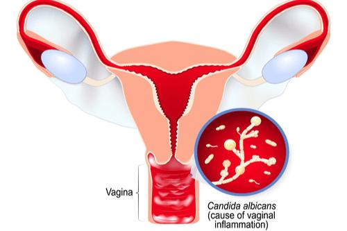 Yeast infection vagina