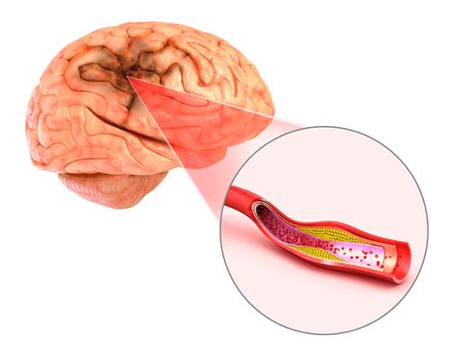 cerebral cavernoma hemorrhage