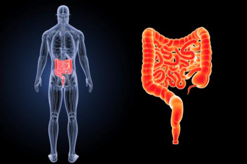 irritable bowel intestine