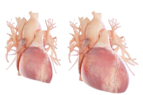 AMYLOIDOSIS enlarged heart