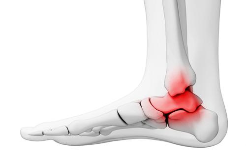 Ankle Osteoarthritis swelling