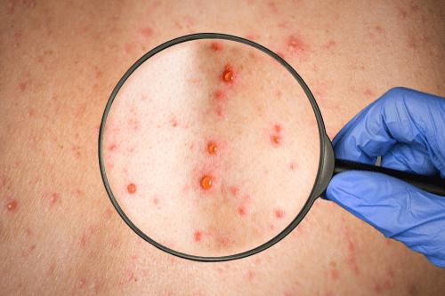 Blood Disorders skin