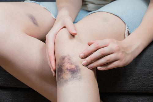 Bruises hematoma