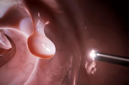 COLON POLYPS colonoscopy