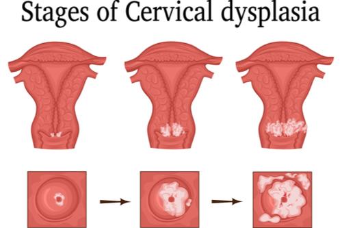 Cervical dysplasia stages