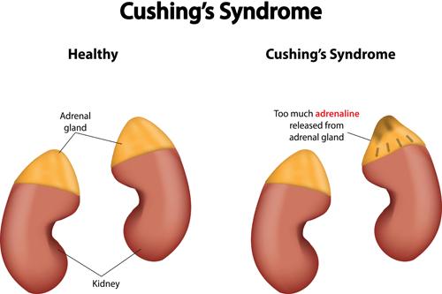 Cushing syndrome cortisol