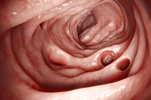 DIVERTICULITIS intestines