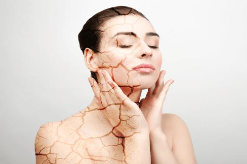Dry skin woman