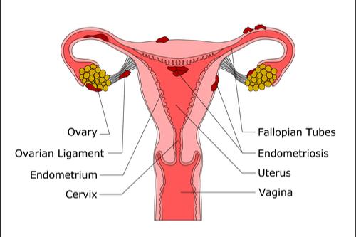 ENDOMETRIOSIS uterus