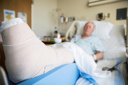 GAUCHER DISEASE fracture