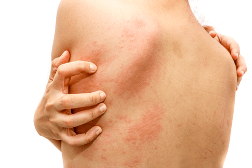 Hives: Facts, causes, allergic response, treatment