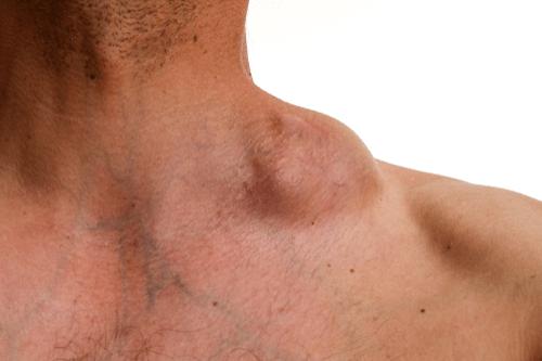 Hodgkin's disease tumor