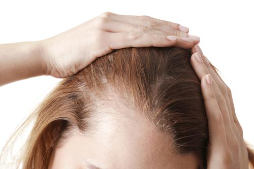LUPUS hairloss