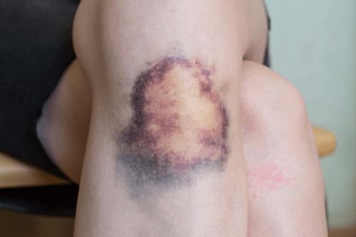 MYELODYSPLASTIC SYNDROMES bruising