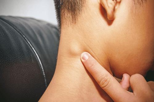 NON-HODGKIN'S LYMPHOMA lymph node