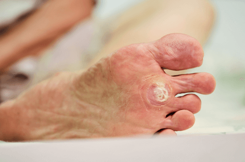 Foot Corns: Overview, facts, causes, remedies, & prevention | FactDr