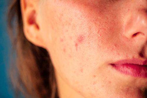 POLYCYSTIC OVARY SYNDROME acne
