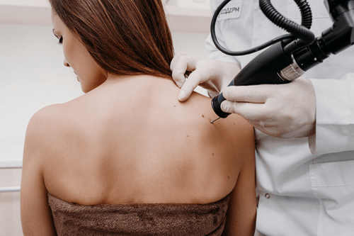 PRECANCEROUS SKIN LESIONS diagnosis