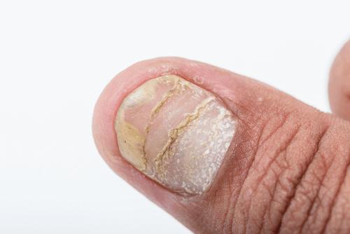 PSORIASIS nail