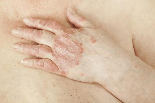 Psoriatic Arthritis hands