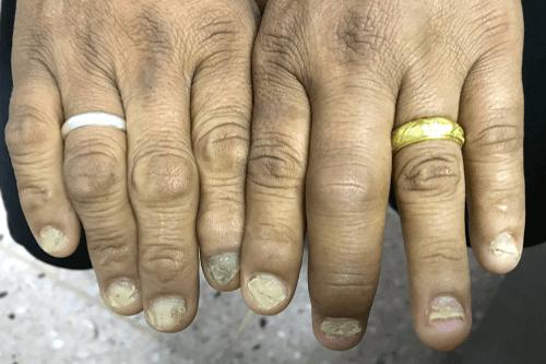 Psoriatic Arthritis nails