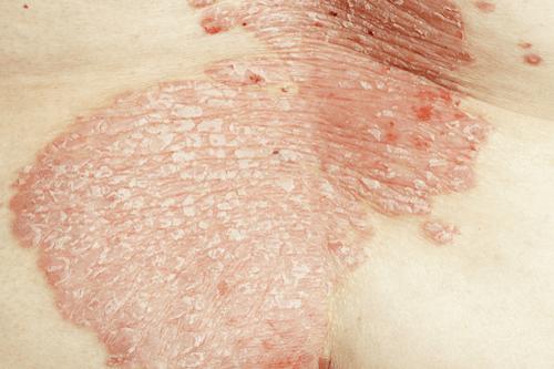 Psoriatic Arthritis skin