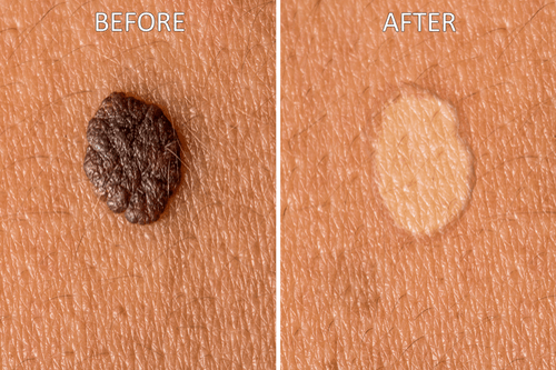 mushroom cookies skin tag removal