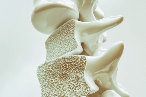 Spinal fracture osteoporosis