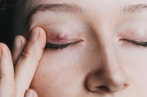 Stye upper eyelid