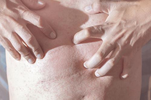 Summer skin hazards itching