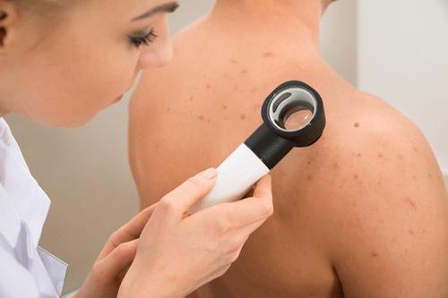 Summer skin hazards melanoma