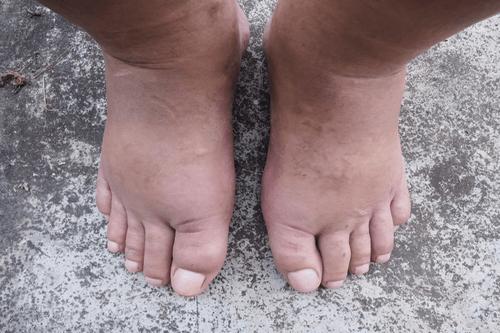 Swollen feet infection