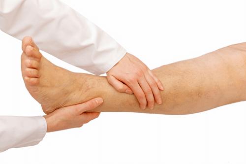Swollen feet treatment