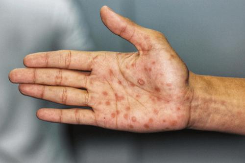 Syphilis sores
