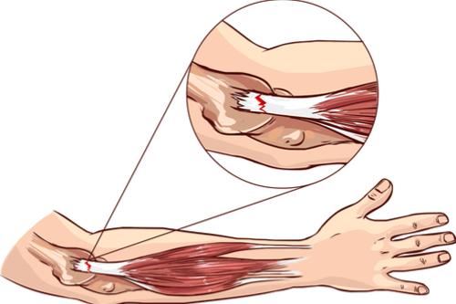 Tennis Elbow tear