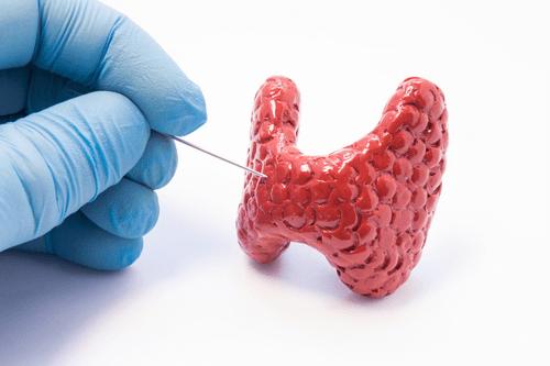 Thyroid disorders pain