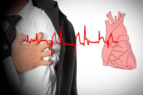 Transient Ischemic Attack ECG