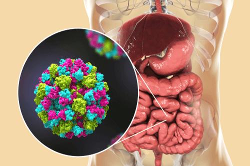 Viral gastroenteritis norovirus