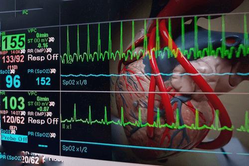 amyloidosis irregular heartbeat