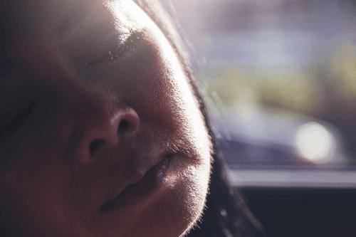 cushing syndrome facial hair