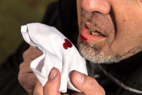 paragonimiasis bloody sputum