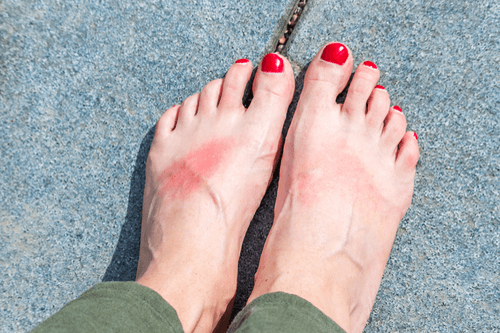 Heat rash feet